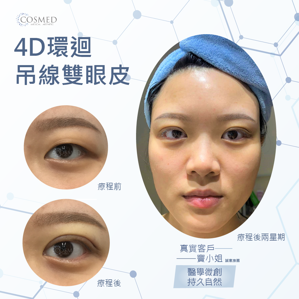 4D環迴吊線雙眼皮_cosmed